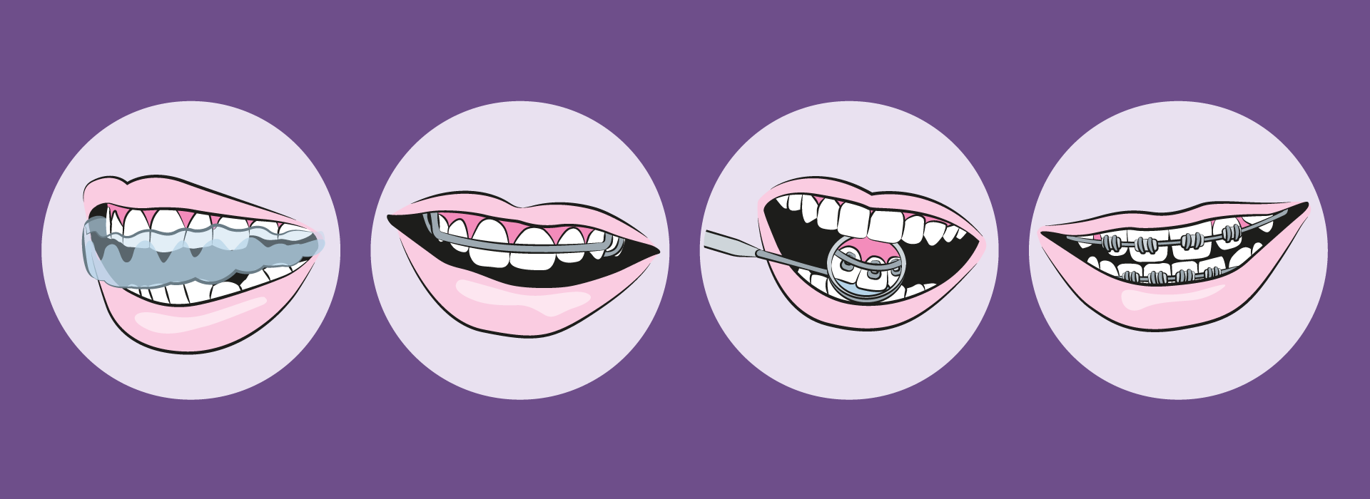 illustration-braces-types