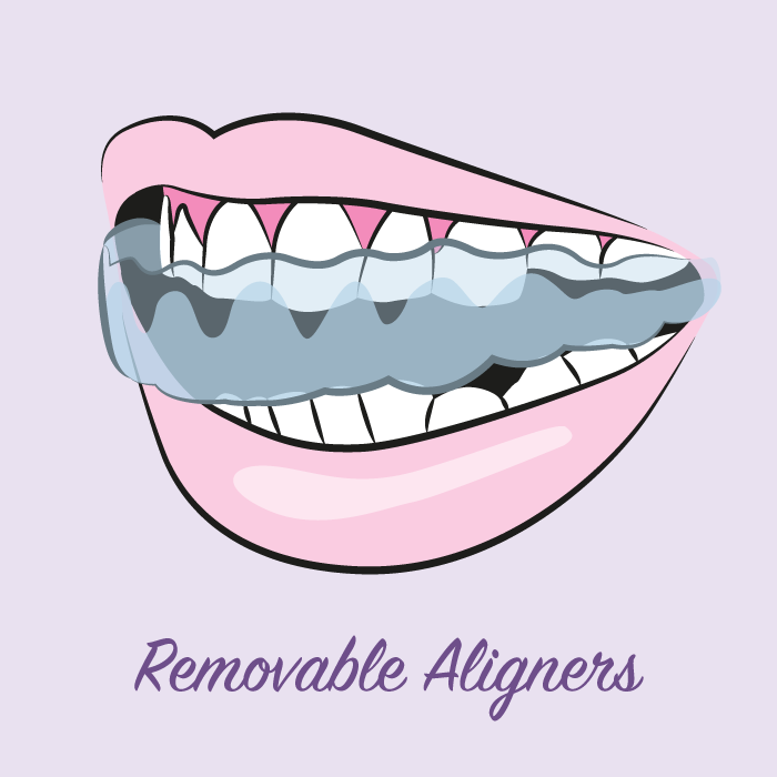 illustration-removable-aligners