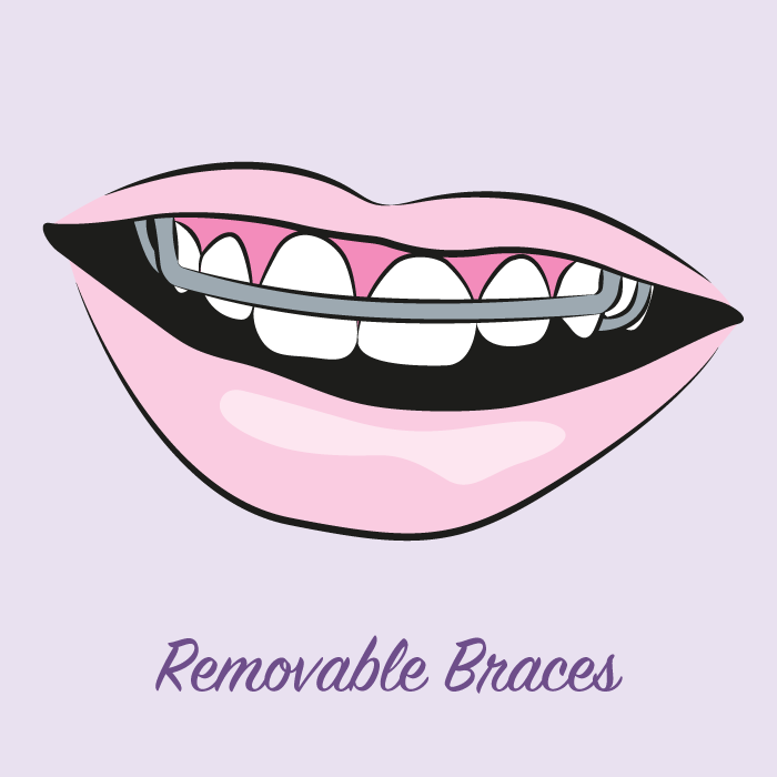 illustration-removable-braces