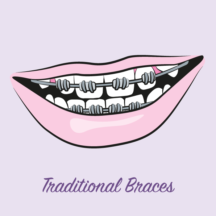 illustration-traditional-braces
